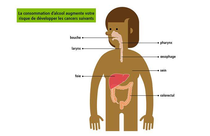 La consommation d'alcool peut causer sept types  de cancer. Source : Société canadienne du cancer